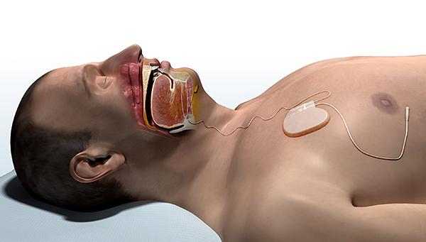 Inspire Nerve Stimulator / Sleep Apnea
