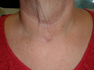 Healed Total Thyroidectomy Incision