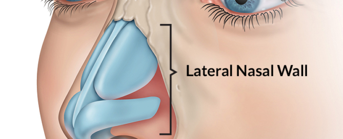 Treatment Of Nasal Valve Collapse Advanced Ear Nose Throat